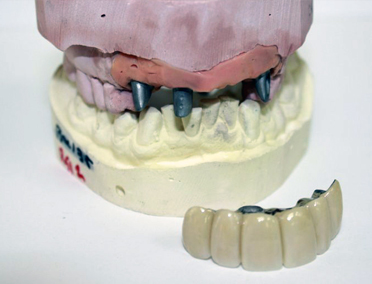 Dentals and Partials
